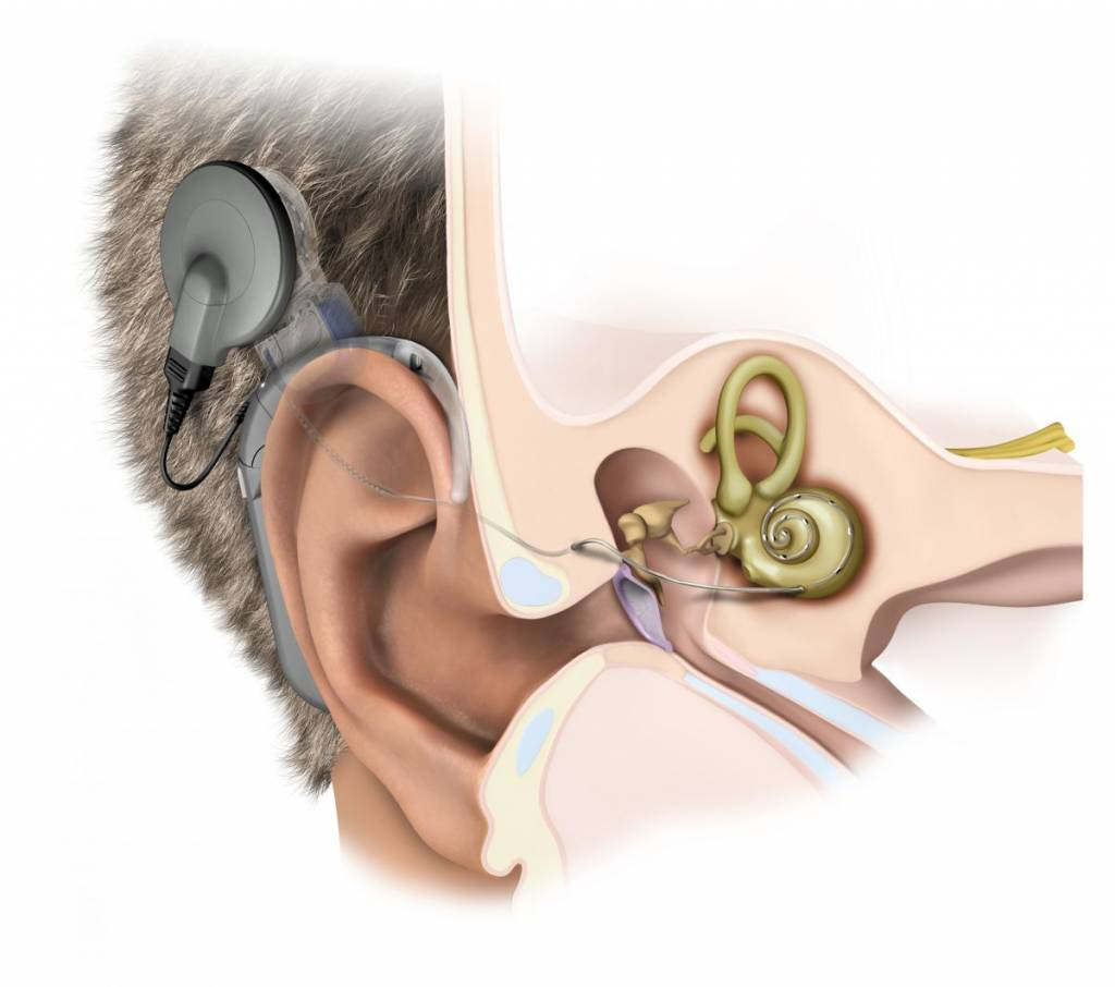 Beyond Traditional Hearing Aids: Cochlear Implants | Hearing ...